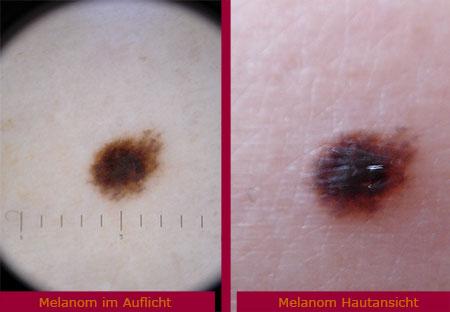 Malignes Melanom Schwarzer Hautkrebs